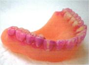 歯を磨いているつもりでも、歯垢は意外と残っています